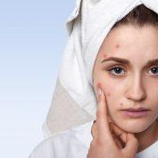 Częste przyczyny trądziku u kobiet