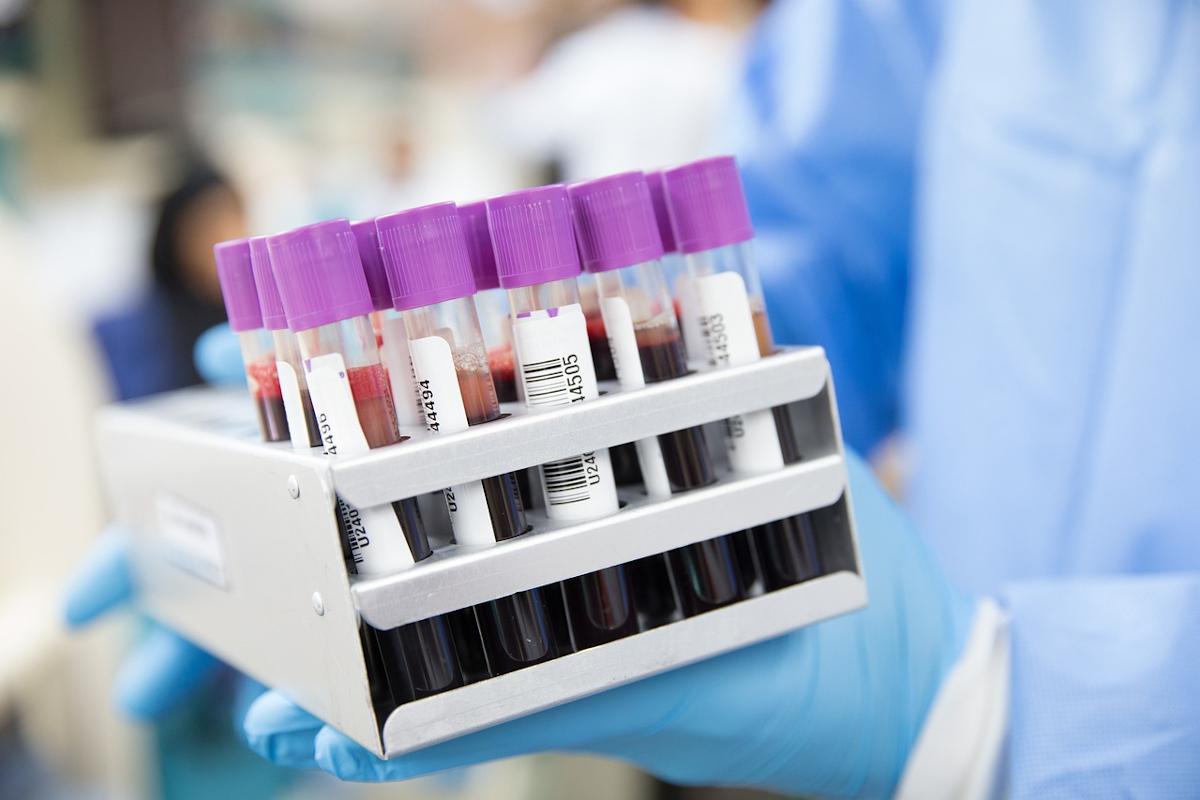Jakie badania krwi dla mężczyzn?